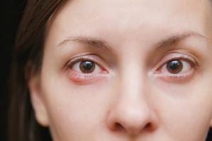 눈 떨림 증상은 대두분 수면 부족, 피로 누적, 마그네슘 등 전해질 불균형으로 생기지만 삼차신경통 때문에도 발생한다.